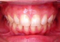 2.上顎前突(じょうがくぜんとつ)の治療例