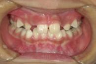 4.交差咬合の治療例