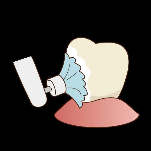 研磨剤を使って歯の汚れを取る