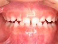 1.下顎前突(かがくぜんとつ:受け口)の治療例