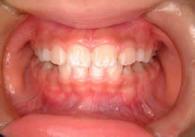 3.開咬(かいこう)の治療例